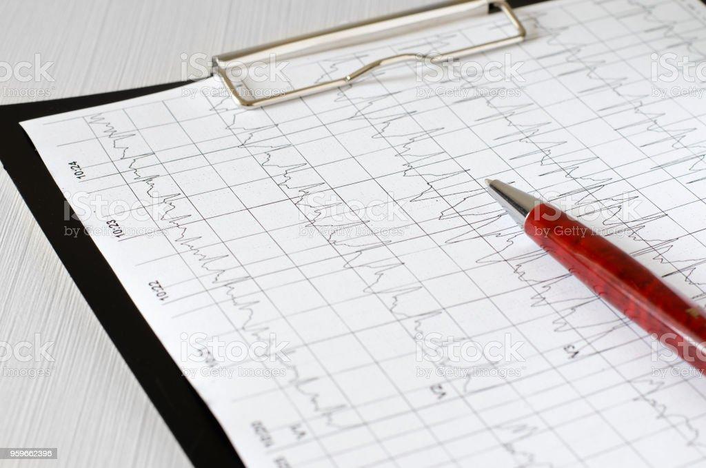 Gráfico del electrocardiograma, análisis de corazón. Portapapeles negro - Foto de stock de Arritmia cardíaca libre de derechos