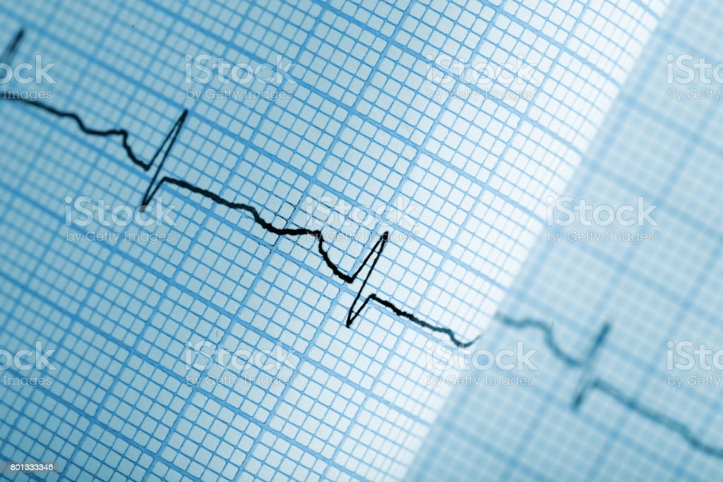 Gráfico de eletrocardiograma no papel - foto de acervo