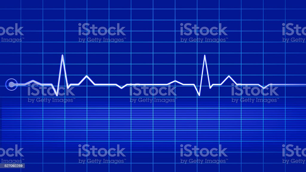 Electrocardiogram on blue monitor stock photo