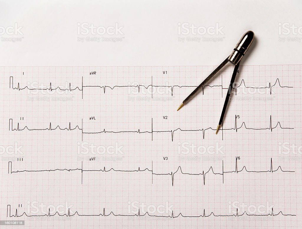 Electrocardiogram, or EKG, With Calipers royalty-free stock photo