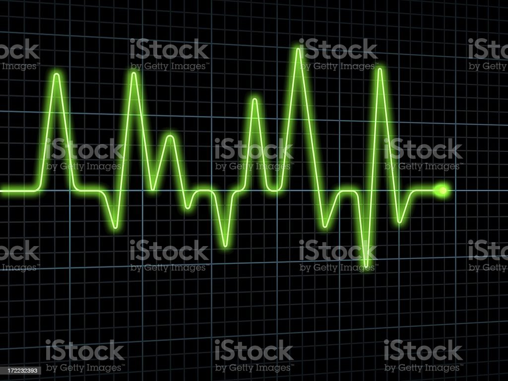 Electrocardiogram (ECG / EKG) stock photo