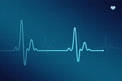 Illustration of an electrocardiogram (ECG / EKG).