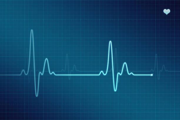 EKG - Electrocardiogram (XXL) Illustration of an electrocardiogram (ECG / EKG). pulse trace stock pictures, royalty-free photos & images