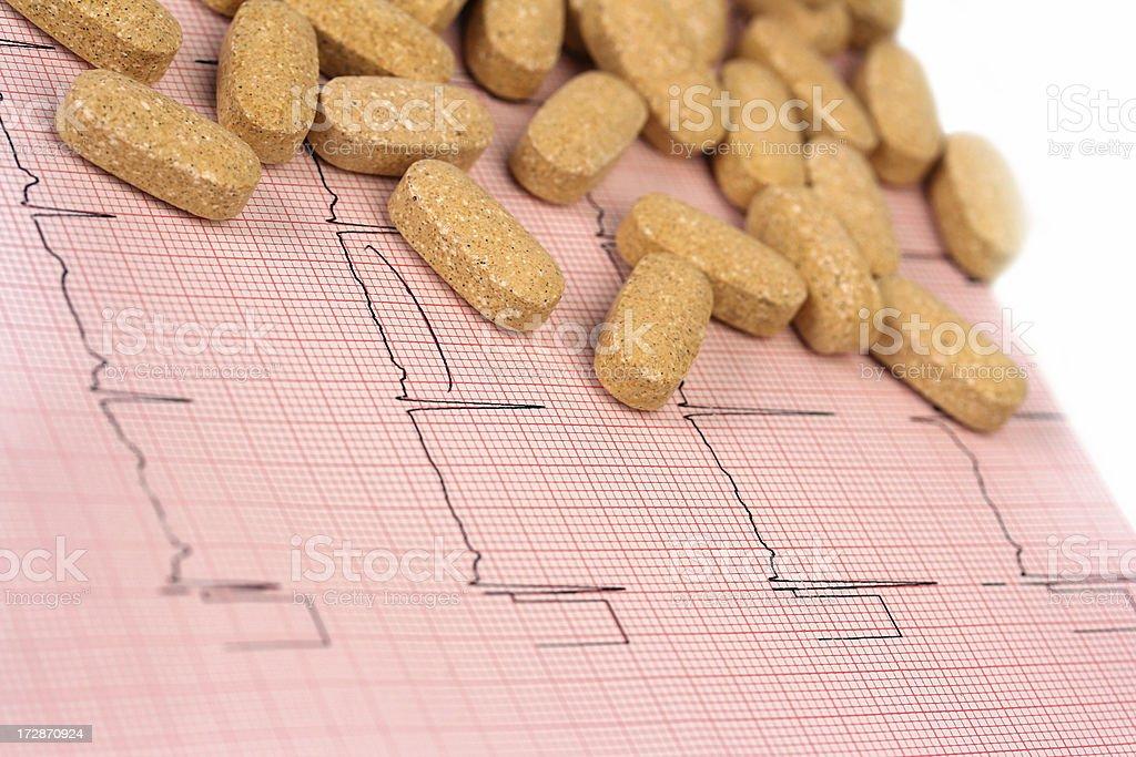 EKG - Electrocardiogram stock photo
