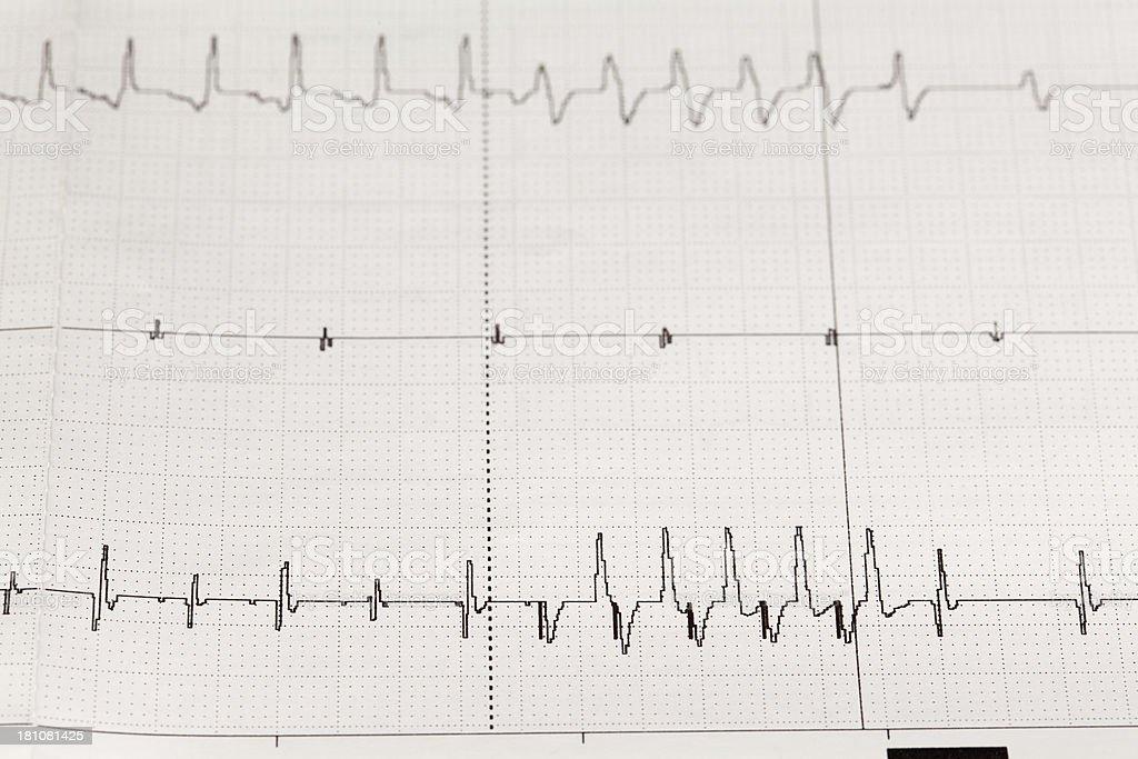 electrocardiogram (ECG) stock photo
