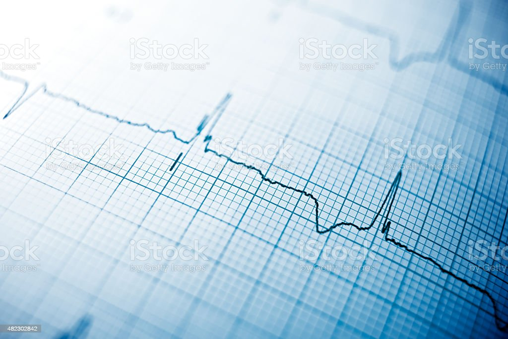 Electrocardiogram Close up of an electrocardiogram in paper form. 2015 Stock Photo