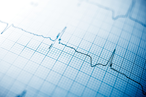 Heart rate stock photos