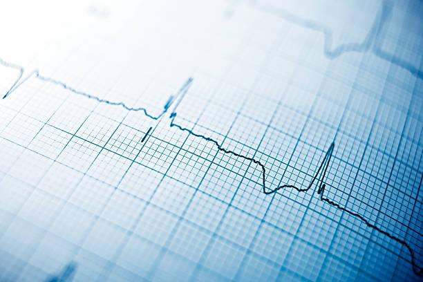 Electrocardiogram - foto de acervo