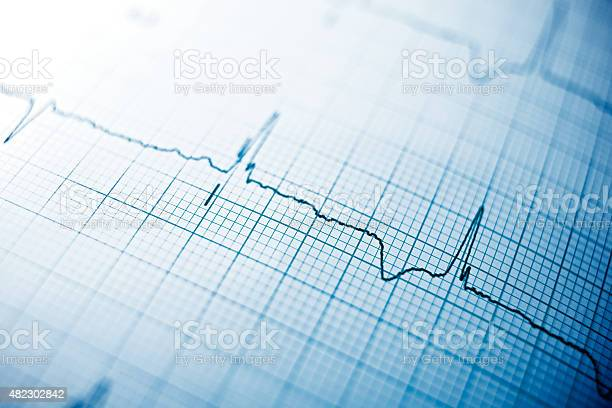 Electrocardiogram Stock Photo - Download Image Now
