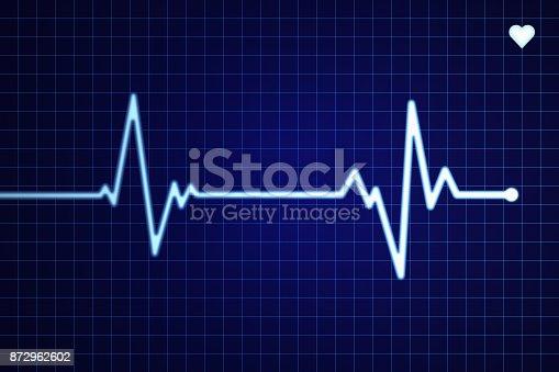 Electrocardiogram (ECG/EKG) screen with flatline.