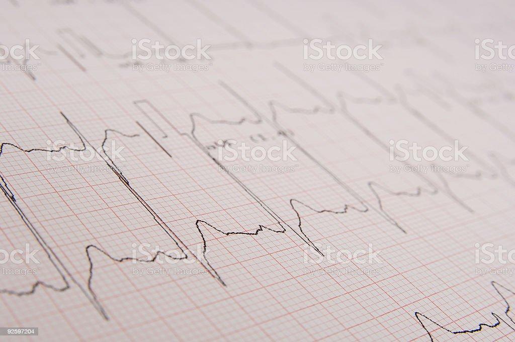 Electrocardiogram royalty-free stock photo