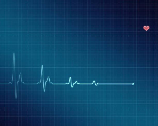 electrocardiogram (ecg/ekg) screen with flatline - taking pulse stock photos and pictures