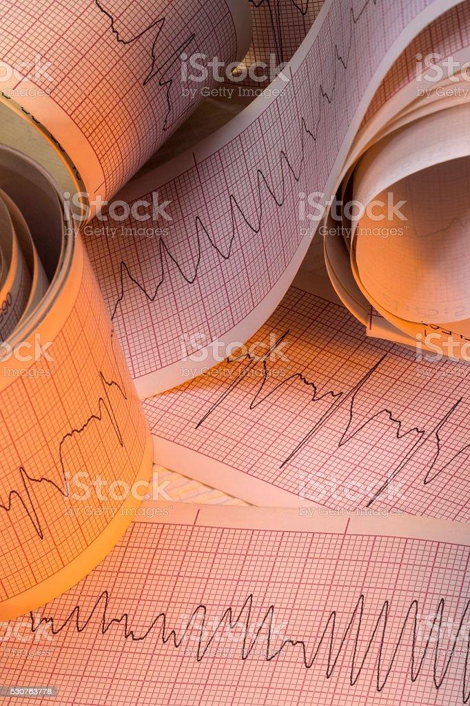Electrocardiograph Traces - Cardiac Arrhythmia stock photo