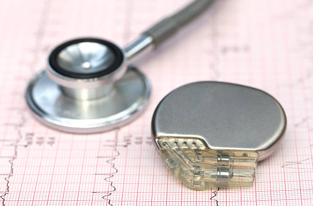 Electrocardiograph with stethoscope and pacemaker Close up of electrocardiograph with stethoscope and pacemaker pacemaker stock pictures, royalty-free photos & images