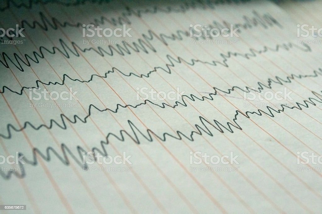 Electroencephalogram EEG stock photo