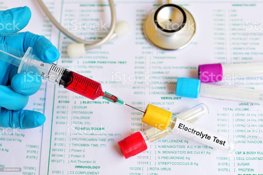 Electrolyte test stock photo
