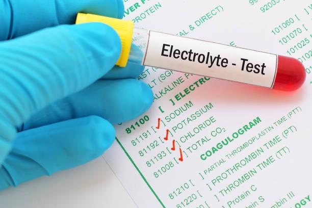elektrolyt test - kalium stockfoto's en -beelden