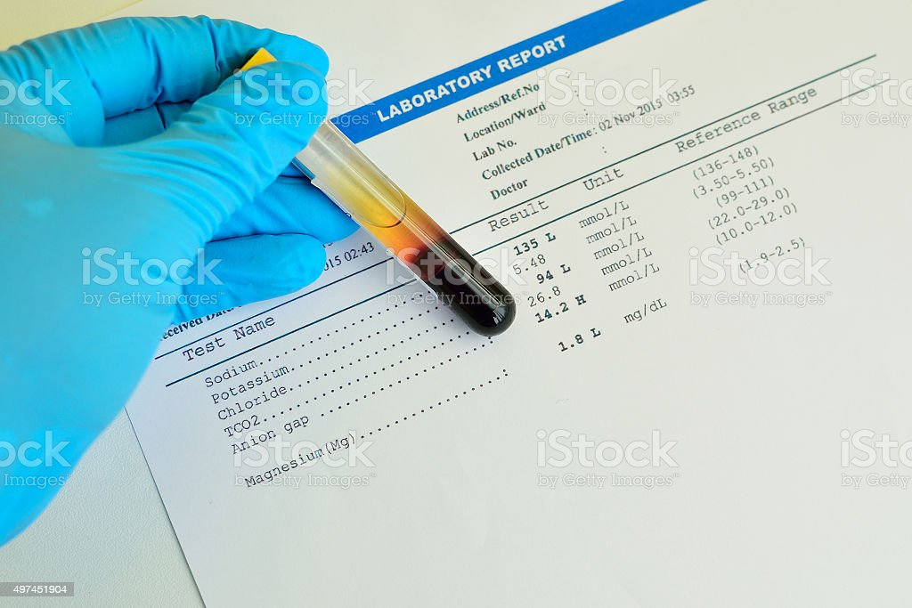 Electrolyte testing result stock photo
