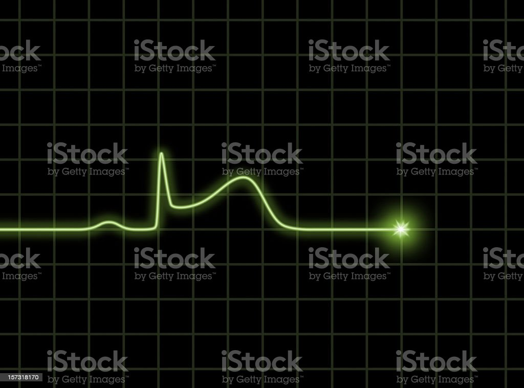 ST elevation ECG wave royalty-free stock photo