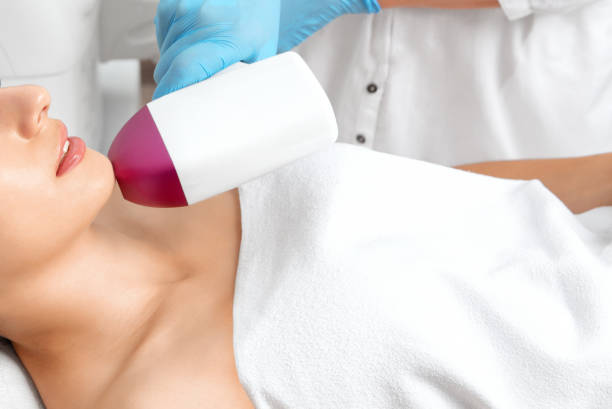 Elos epilation hair removal procedure on the face of a woman. Beautician doing laser rejuvenation on the chin in a beauty salon. Facial skin care. Hardware ipl cosmetology stock photo