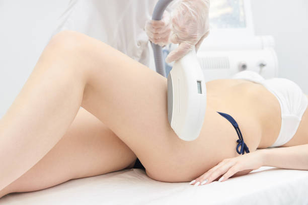 Elos Laser Legs Hair Removal. Epilation Treatment In Cosmetic Beauty Clinic SONY DSC tighten stock pictures, royalty-free photos & images