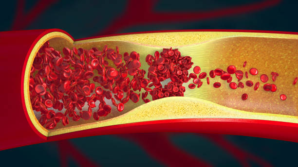 Embolism caused by a blood clot in a constricted blood vessel - 3d illustration stock photo