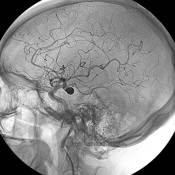 Embolization for treating aneurysm in the brain stock photo