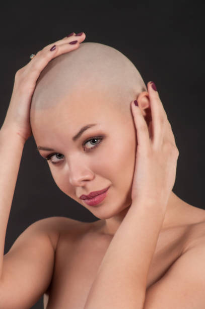 Emotional Portrait Of A Naked Girl Shaved Bald Stock Photo