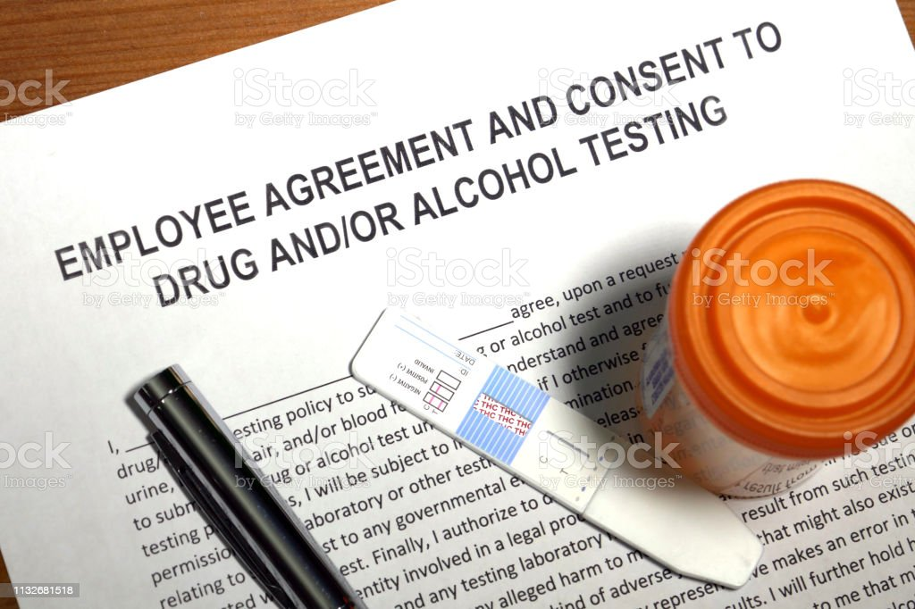 Employee agreement and consent to drug and/or alcohol testing.