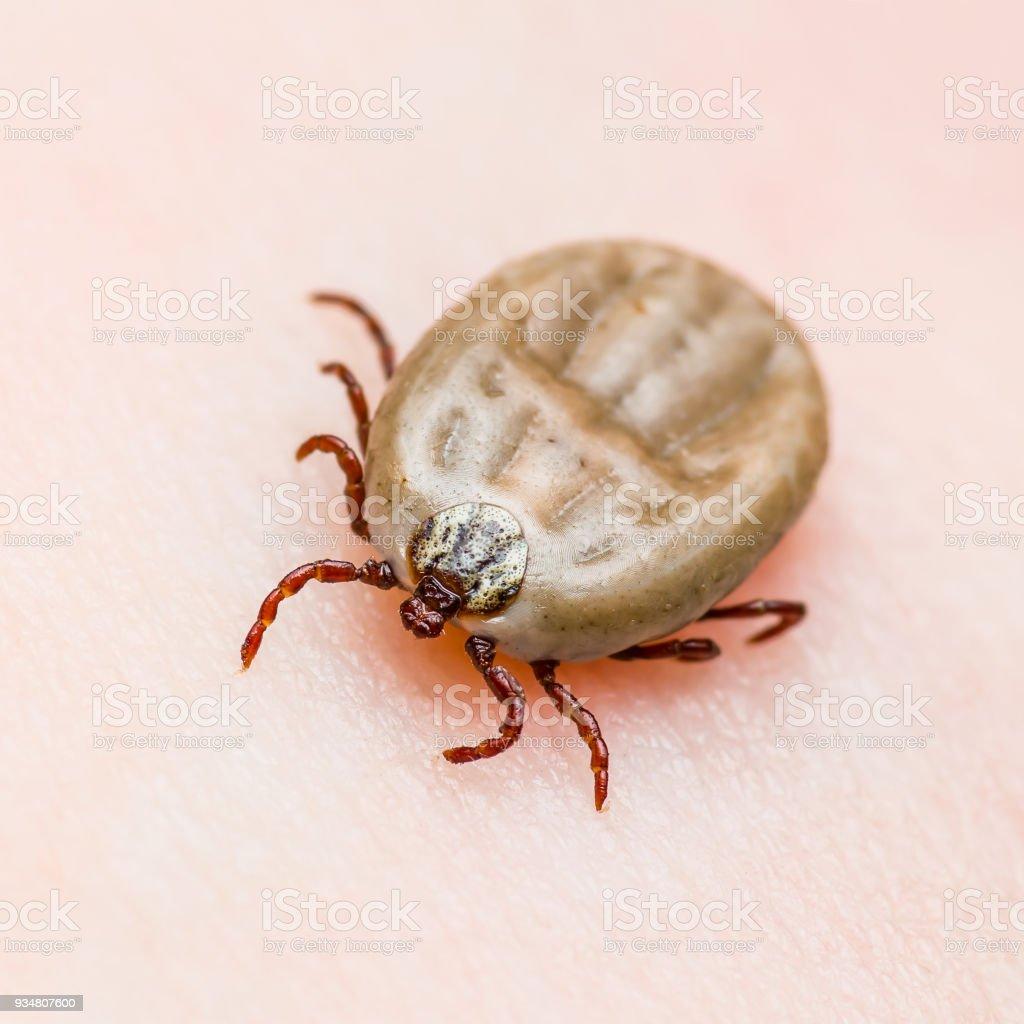 Encephalitis Virus or Lyme Disease or Monkey Fever Infected Tick Arachnid Insect on Skin stock photo