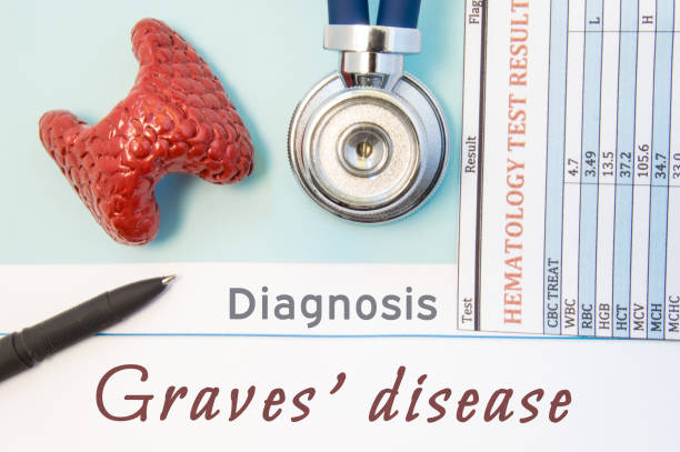1 358 Graves Disease Stock Photos Pictures Royalty Free Images
