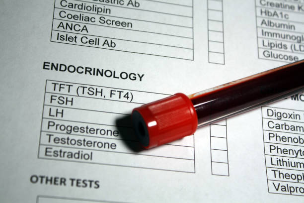 Endocrinology hematology sample Vacutainer blood collection tube with blood work requisition document. endocrine system stock pictures, royalty-free photos & images