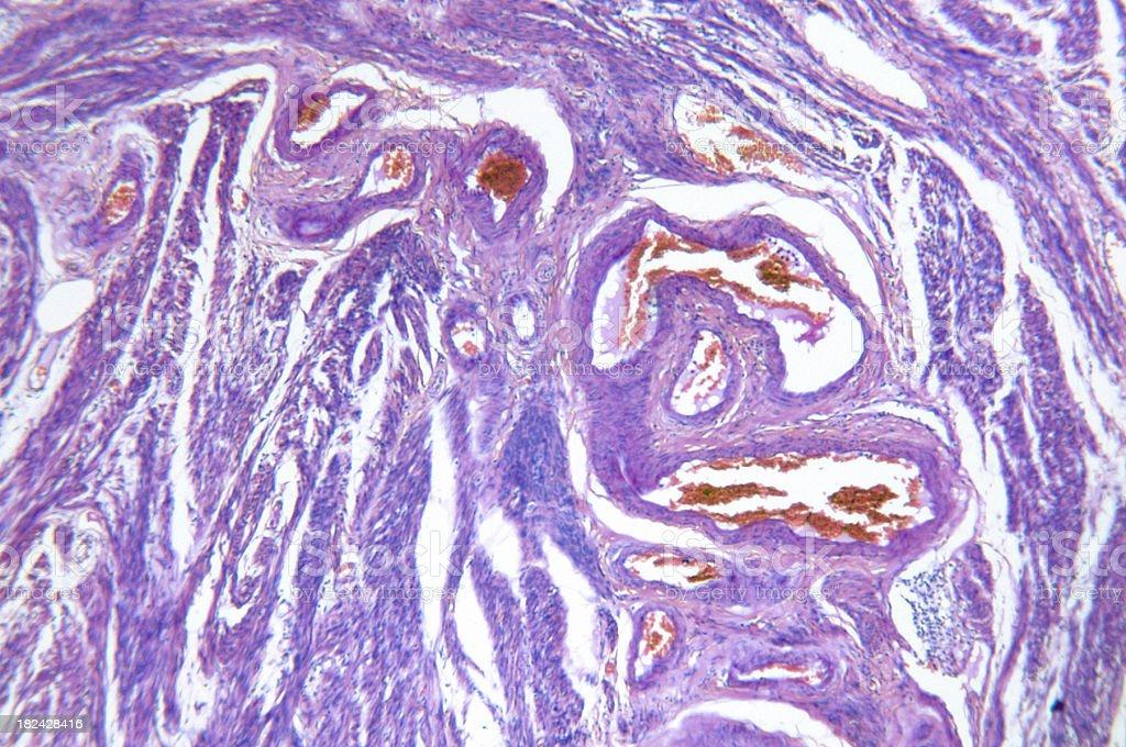 Endometrial Adenocarcinoma of Womb stock photo