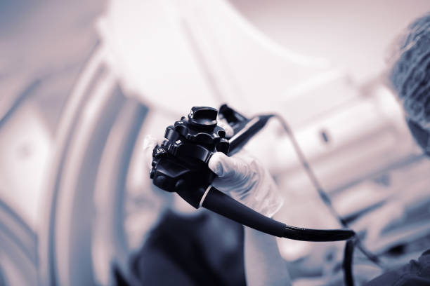 Endoscopy probe in the doctor's hand during procedure stock photo
