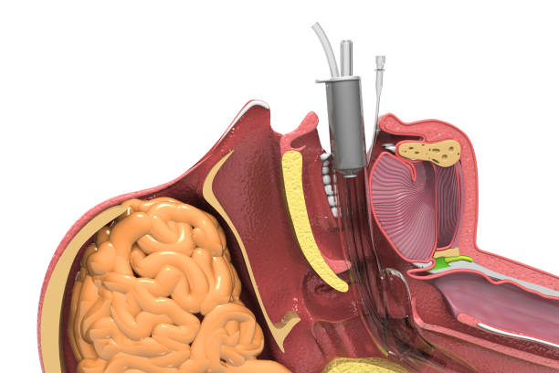 endotracheal intubation. human head cross section - respiratory tract stock photos and pictures