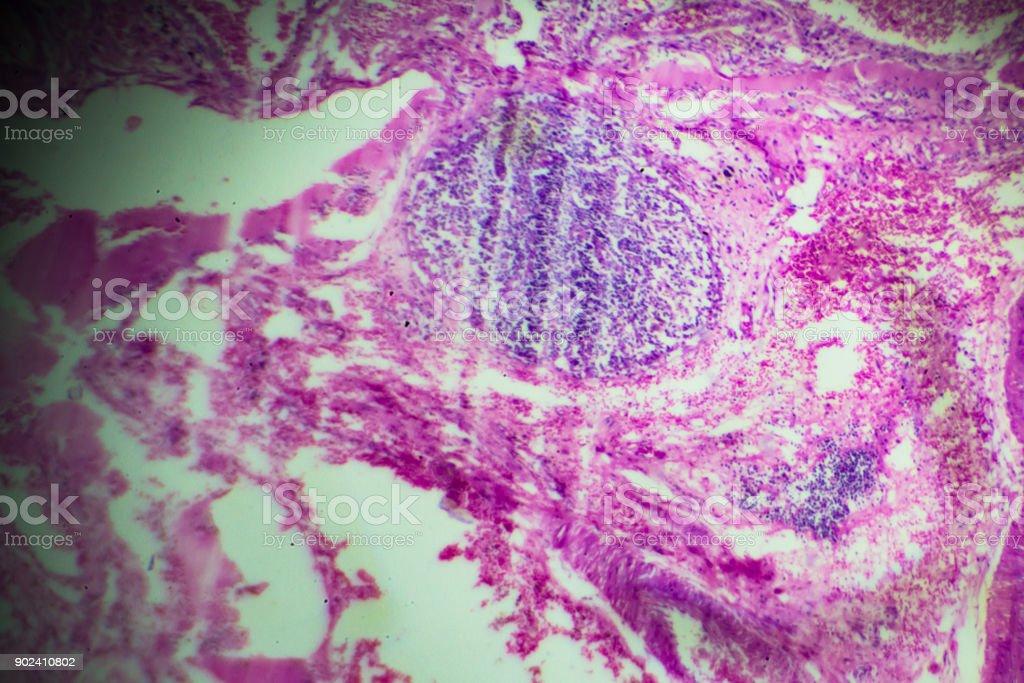 glóbulos eosinófilos bajo microscopia - foto de stock
