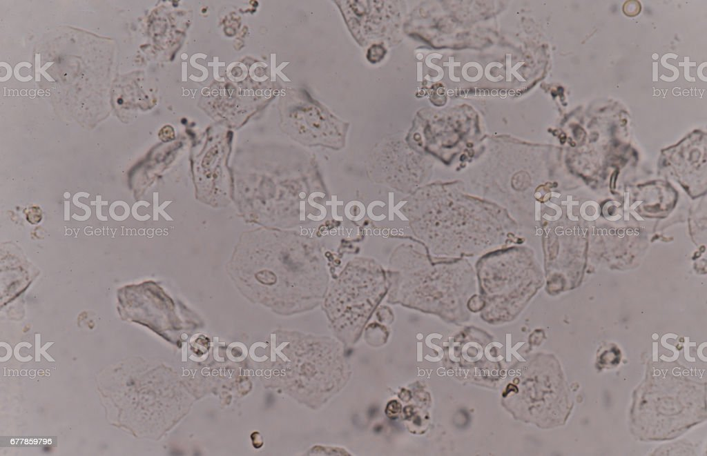 epithelial tissue with bacteria stock photo