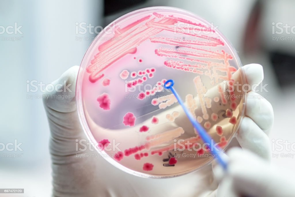 Escherichai coli colonies of pink bacteria ferment lactose culture on MacConkey agar in microbiology department hospital. stock photo