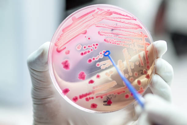 escherichai coli colonies of pink bacteria ferment lactose culture on macconkey agar in microbiology department hospital. - microbiology stock pictures, royalty-free photos & images