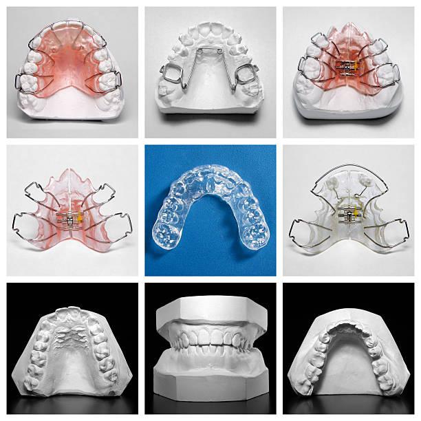 essix retainer entouré de orthodontic appareils électroménagers et bureau des modèles - palais buccal photos et images de collection