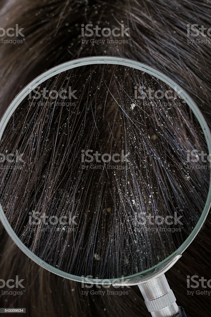 Examiming white dandruff flakes in hair with magnifying glass. stock photo