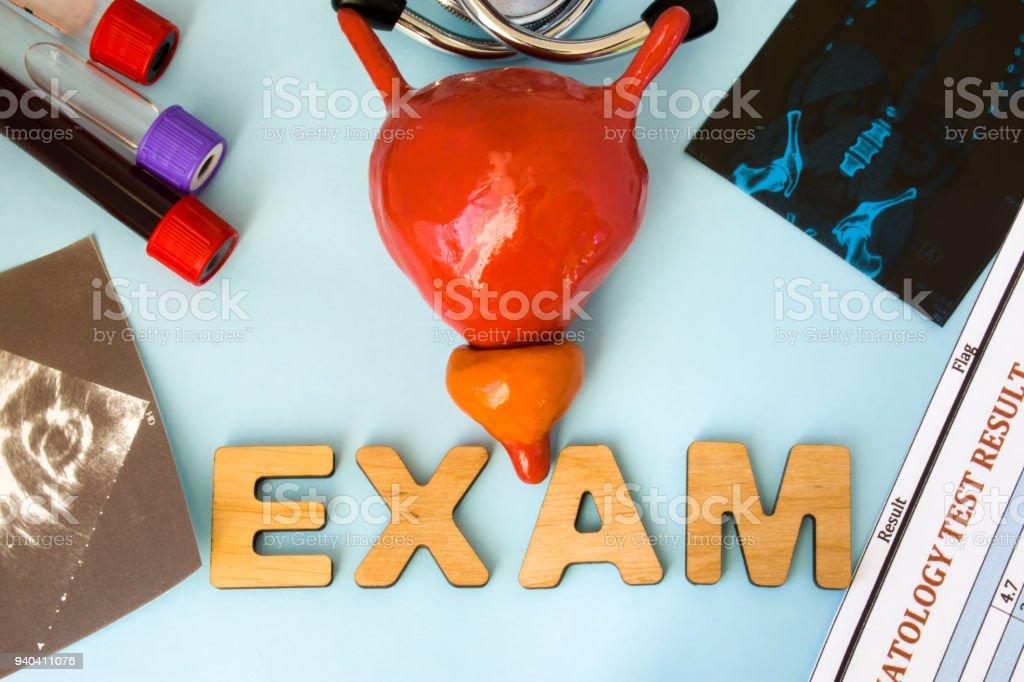 Examen En Endocrinología Modelo De La Anatomía De La Vejiga Con ...