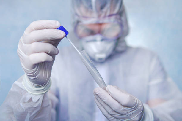 Examination of mucosal smears. The scientist is holding a test tube. Study of viruses in sputum of the lungs. Test for flu or coronavirus infection. Development of biological weapons. stock photo