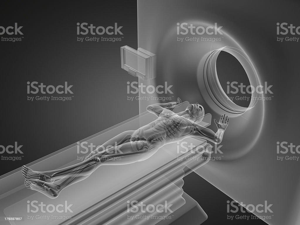 MRI examination royalty-free stock photo