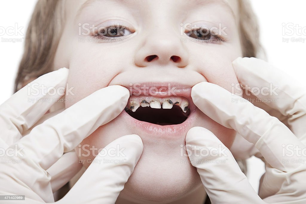 Examining caries teeth decay stock photo