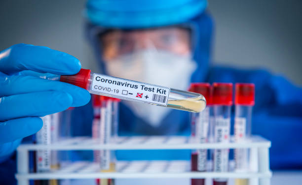 Examining coronavirus COVID 19 medical samples on kits novel corona virus outbreak Doctor wearing highly protective suit and examining a novel coronavirus covid 19 test tubes in laboratory. medical test stock pictures, royalty-free photos & images