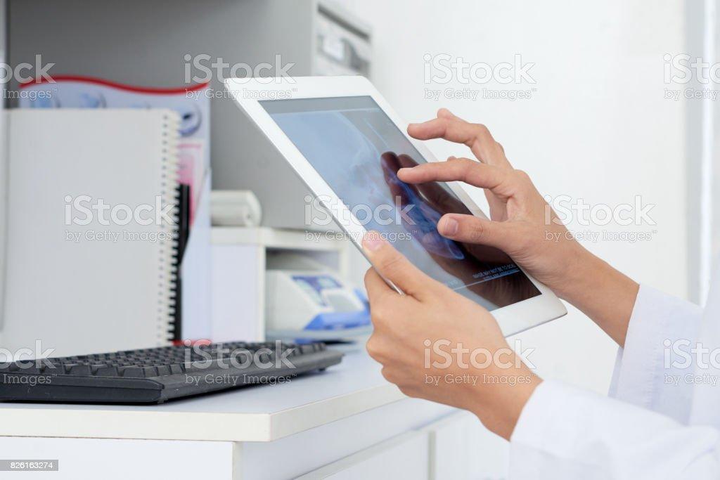Examining jaw x-ray stock photo