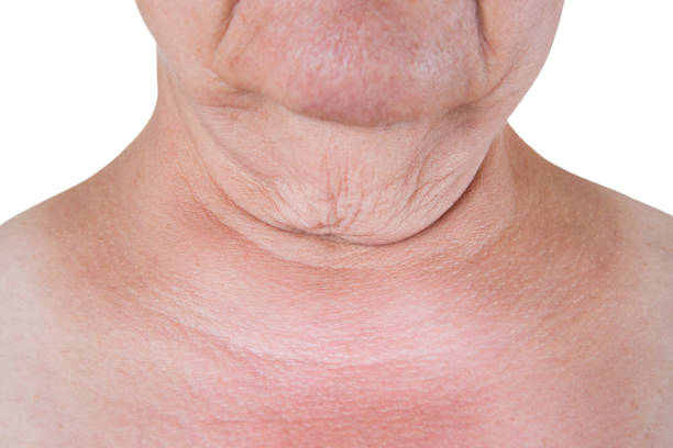 Excess skin on the neck of an elderly woman isolated on white background stock photo