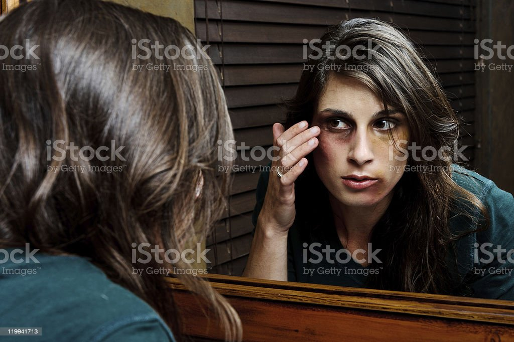 Extent of injuries; domestic abuse concept stock photo