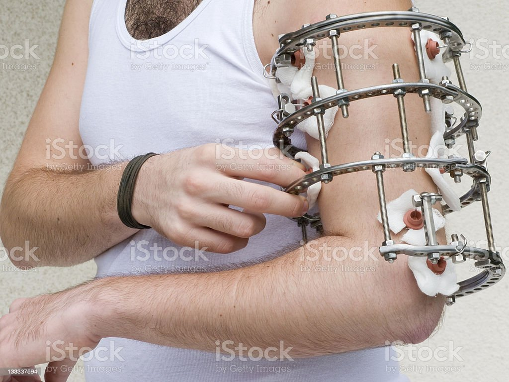 External ring  fixation royalty-free stock photo